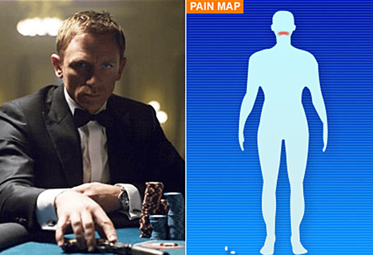 Daniel Craig's on-set injury